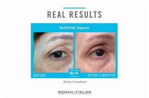 RODAN + FIELDS:  Changing Skin.  Changing Lives.